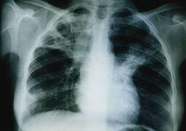 nombre tuberculose